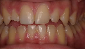 Dental Crowns Before Photo