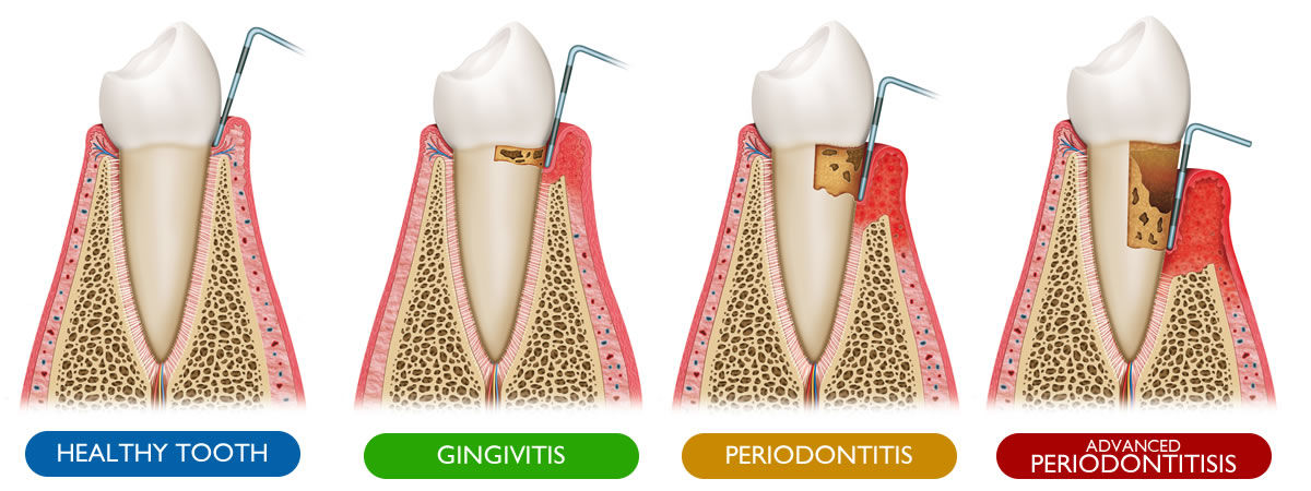 Gum Disease Stages - Healthy Tooth, Gingivitis, Periodontitis, Advanced Periodontitis