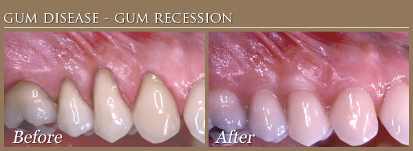 gum disease treatment before and after