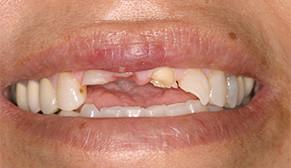 Implants and Veneers Before Photo