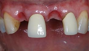 Anterior Implants Before Photo