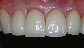 Anterior Implants After Photo